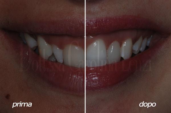 smile design prima e dopo sorriso