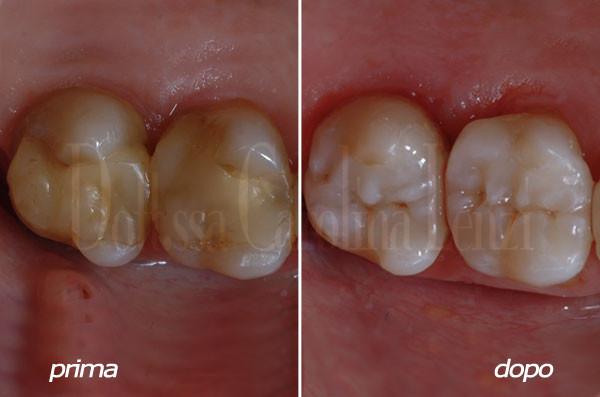 intarsio al molare prima e dopo