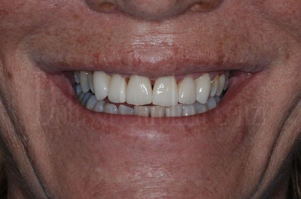 faccette dentali caso 1 dopo