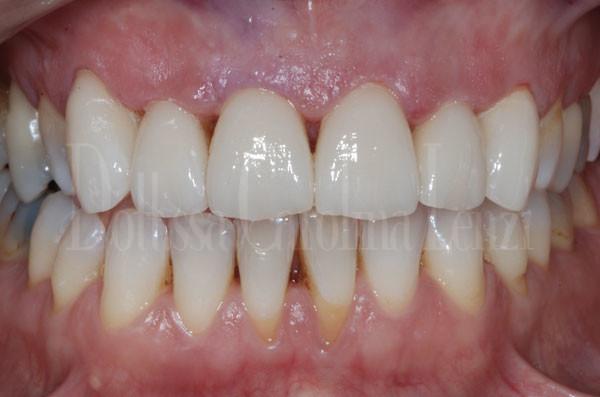faccette dentali caso 1 dopo dettaglio denti