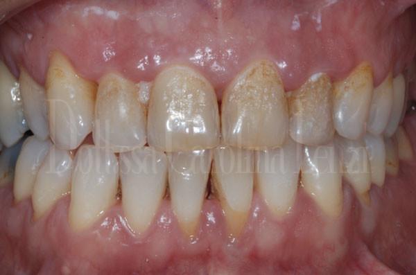 faccette dentali caso 1 prima dettaglio denti