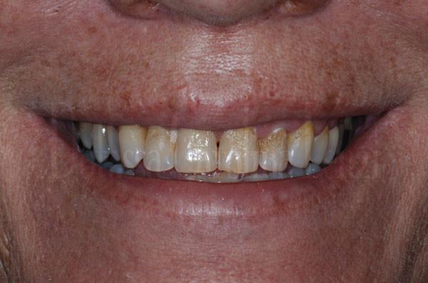 faccette dentali caso 1 prima