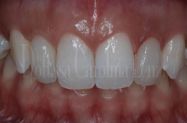 Faccette dentali caso 2 dopo dettaglio denti