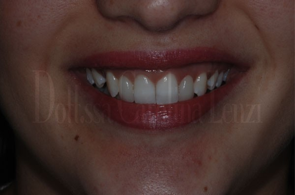 Faccette dentali caso 2 dopo sorriso