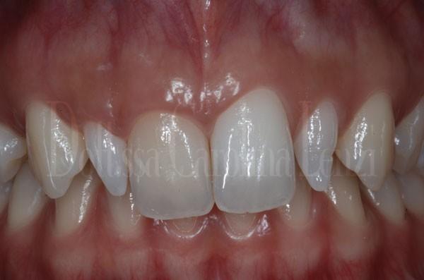 Faccette dentali caso 2 prima