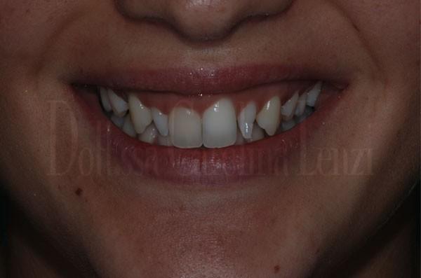 Caso due faccette dentali PRIMA