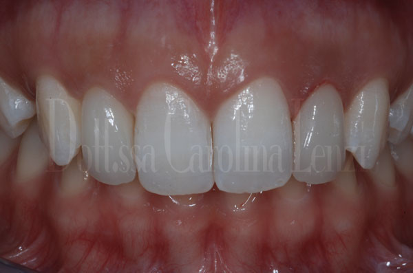 smile-design-denti-dopo