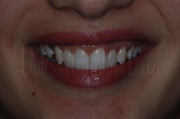 smile-design-sorriso-dopo