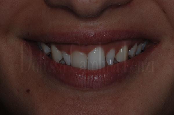 smile-design-sorriso-prima