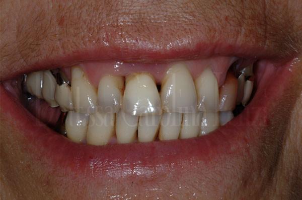 il sorriso prima impianto dente singolo