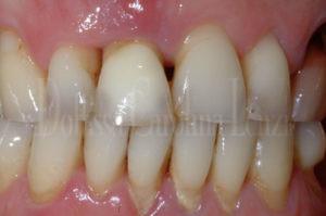dettaglio denti prima