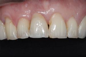dettaglio impianto denti dopo