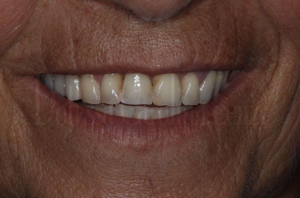 Il sorriso dopo l?impianto dente singolo