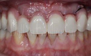 full arches denti dopo
