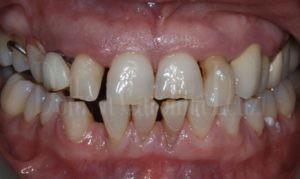 full arches prima denti